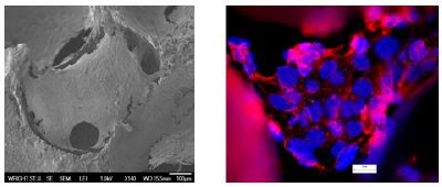 Bone cells cultured on foam: (a) Electron Microscope images showing cells grow well on carbon foam (b) Cell staining images showing details of the nuclei (blue) and Cytoplasm (pink).