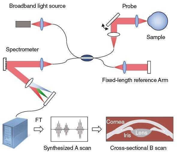 Spectral domain optical coherence tomography (SD-OCT) system with lateral probe beam displacement for cross-sectional B scan imaging. A computer converts the spectrometer data to a synthesized A scan by means of a Fourier Transform. (FT)