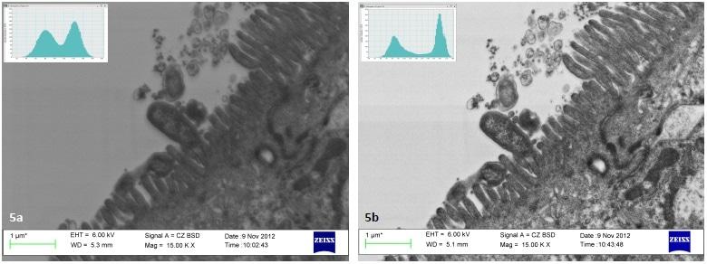 Analysis of images in Joubert