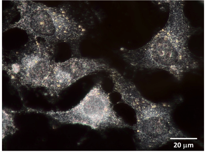 Dark field image of human breast cancer cells tagged with gold nano particles (60 nm size).