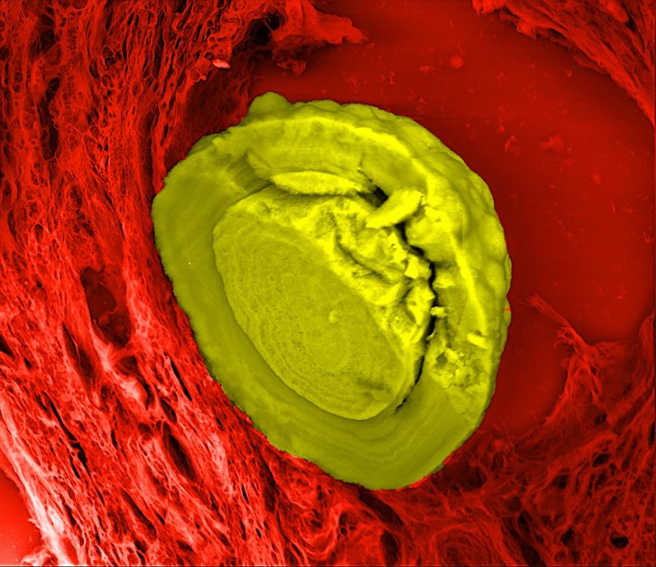 Calcifthyroid