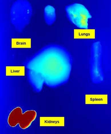 Studies ex vivo won't be necessary anymore to get the biodistribution data in each organ.Image courtesy of the Preclinical Imaging Laboratory of the National Research Center in Ottawa
