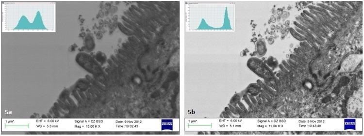 Analysis of images in Joubert5 indicates a 15% increase in contrast of thin sections of Helicobacter pylori on Caco-2 cells after plasma cleaning.