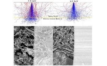 Optimizing 3D Electron Microscopy (3DEM) Results at a Low kV