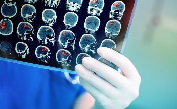 Next-Generation Graphene Bioelectronics for Targeting Severe Chronic Diseases