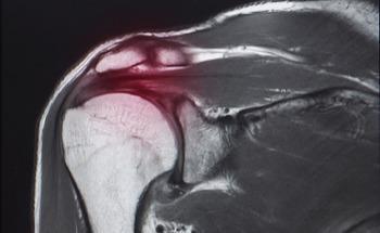 Using Nanoparticles to Promote Tendon–Bone Healing