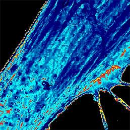 SICM E-Modulus map of live fibroblast cell. SICM E-modulus map of live fibroblast 25 × 25 μm, E = 2 Pa to 3.4 MPa.