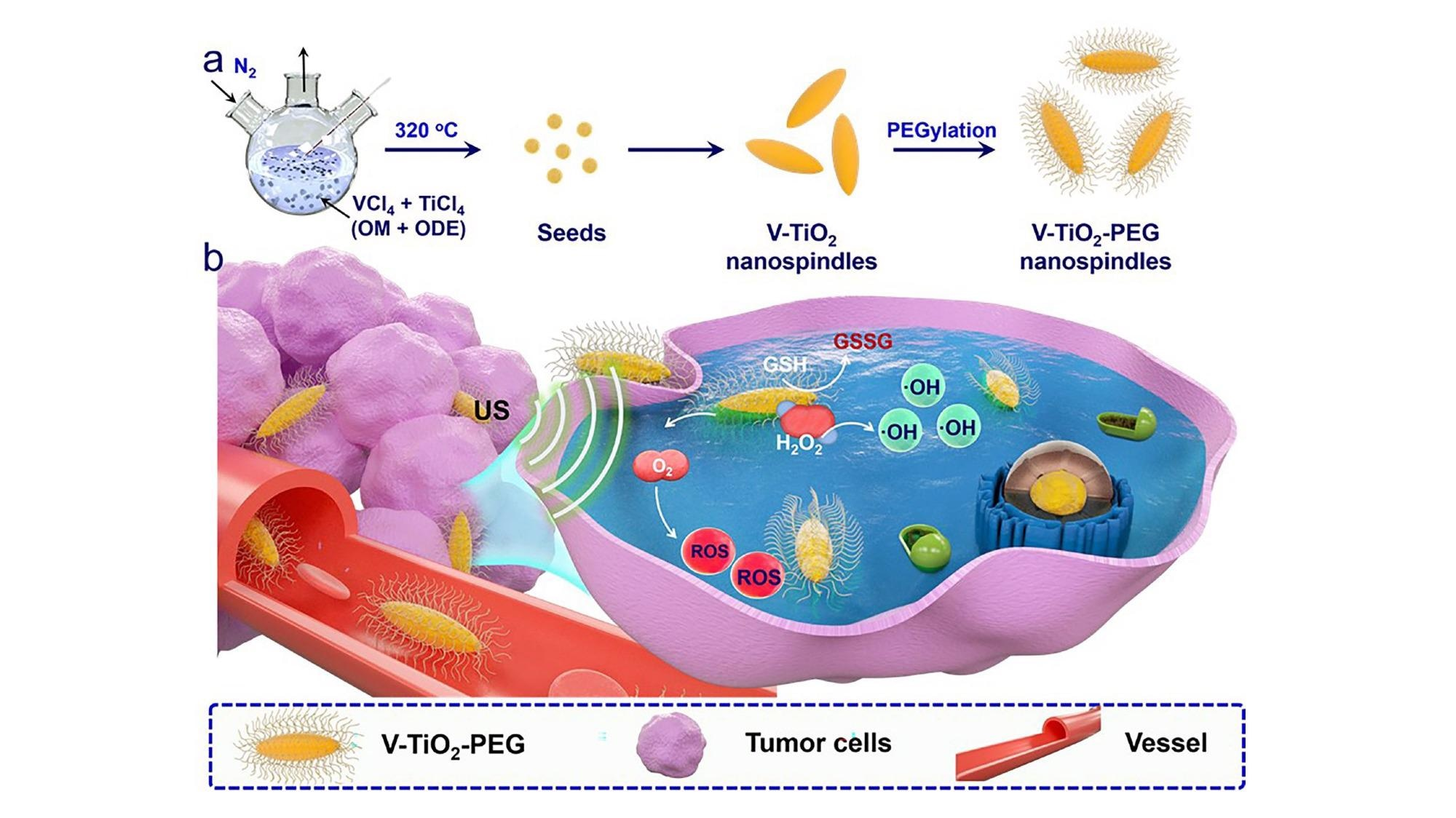 V-TiO2 nanospindles encased in polyethylene glycol (PEG) and used in combination with ultrasound waves can kill cancer cells.