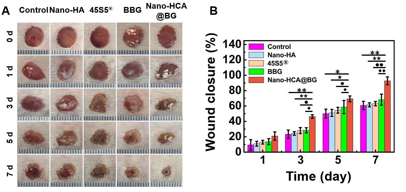 Nano-Scale Borate Bioactive Glass Reduces Biological Toxicity of Borate Bioglass.