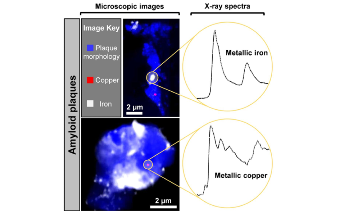 Study Reveals Presence of Nanoscale Metallic Particles in the Human Brain