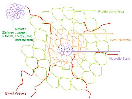 Cancer tumor: Necrotic, Seminecrotic, Proliferating area